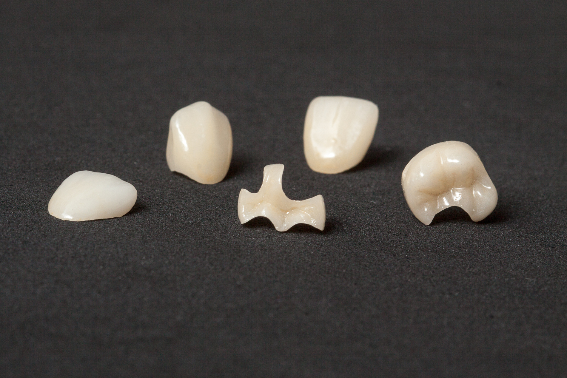 Crowns, inlays and veneers of leucite ceramics