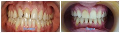 aparat dentar caz 2