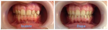 aparat dentar caz 4