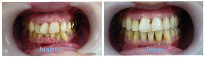 aparat dentar caz 5