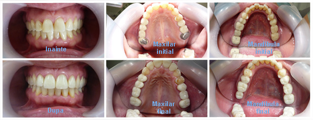 aparat dentar caz 1
