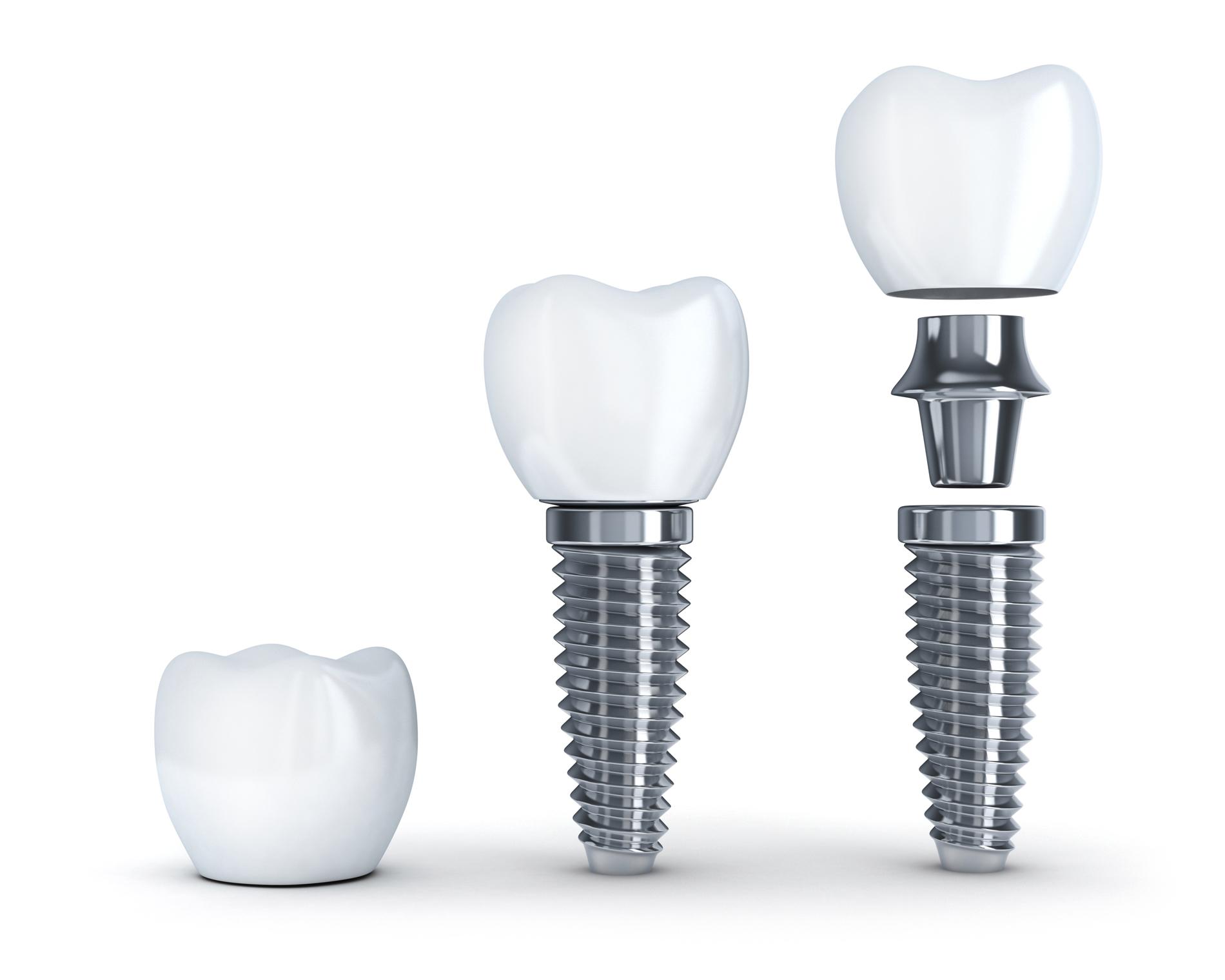 Implant dentar - tipuri, avantaje si pret