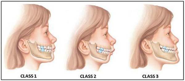 clasare-malocluzie-dentara