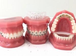 cum alegi aparatul dentar
